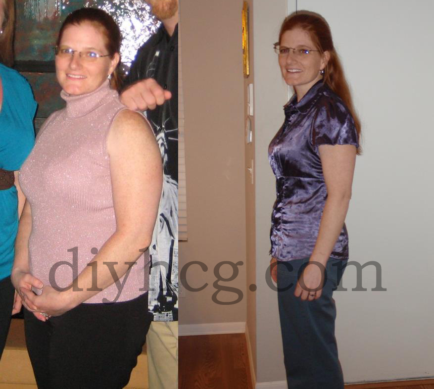 This is Bonnie, she lost 17 pounds in 21 days with the DIY HCG diet... good job girl!
