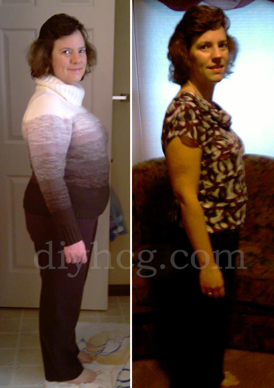 Weight Loss Before And After Pictures - Donna R - Do-it-yourself Hcg