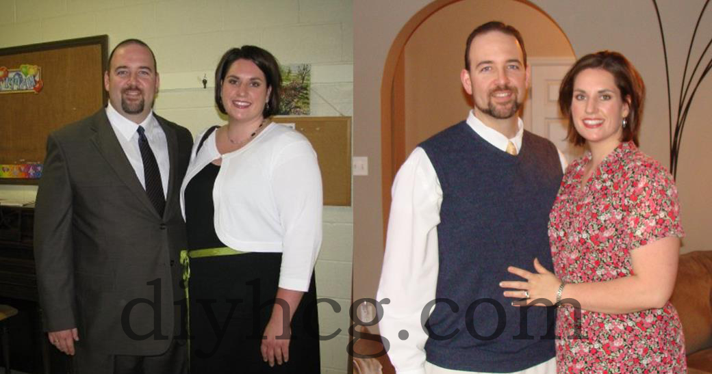 This couple lost over 190 pounds combined with the HCG diet... this is amazing!