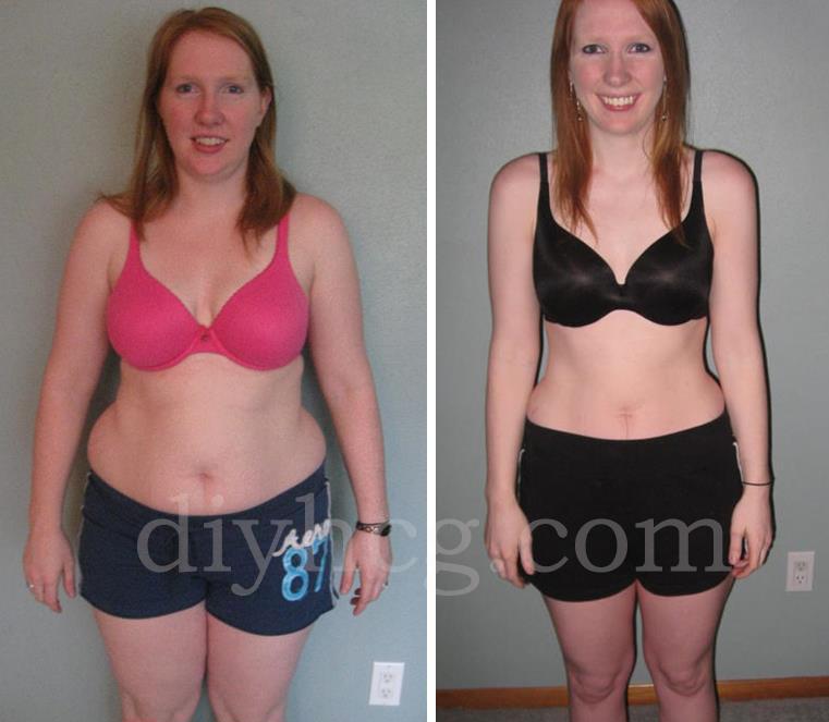 Weight loss retreat massachusetts picture 8