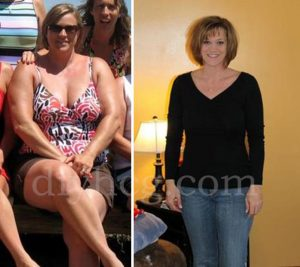 HCG Success Stories: Anne's HCG Before and After - Do-It ...