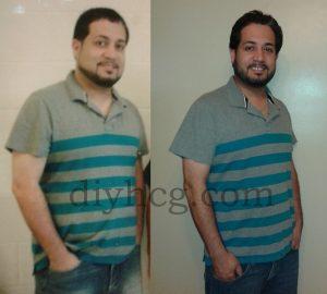 DIY HCG Diet Success Story Photo