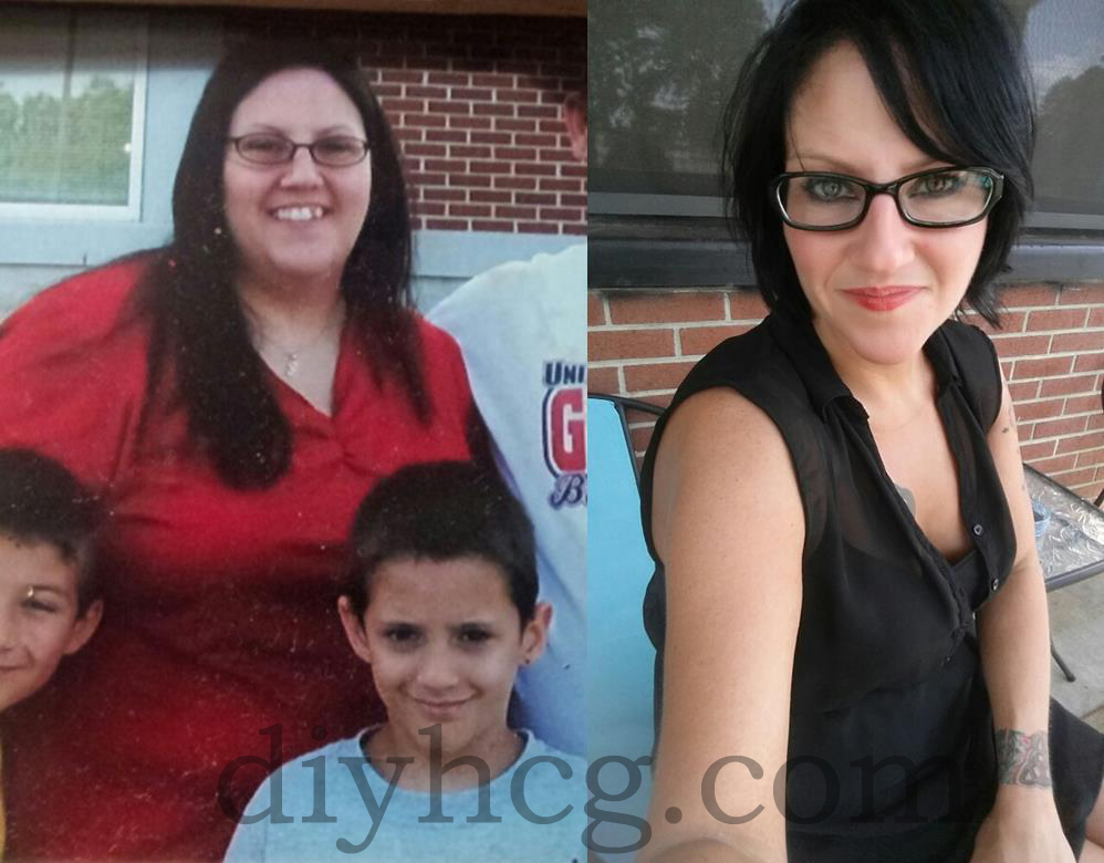 HCG Diet Before and After Photos of Woman's Diet Success ...
