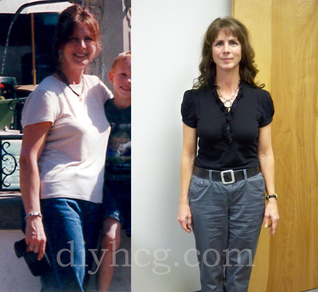 HCG Success Stories: Lynette's HCG Before and After - Do-It